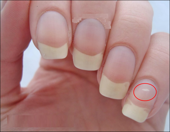 5 Unknown Facts About Your Nails Page 2 Of 5 Discover